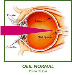 oeil-normal-loin