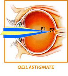 astigmat1