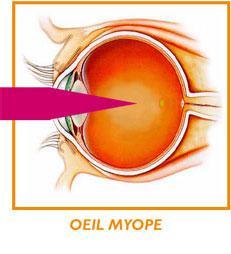 oeil-myope